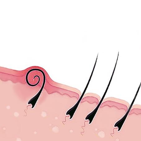 после эпиляции волосы растут