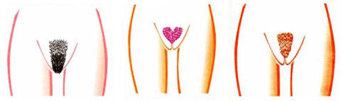 Какие бывают интимные стрижки?