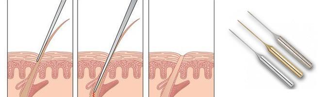 Как воздействует игла электроэпиляции на волос