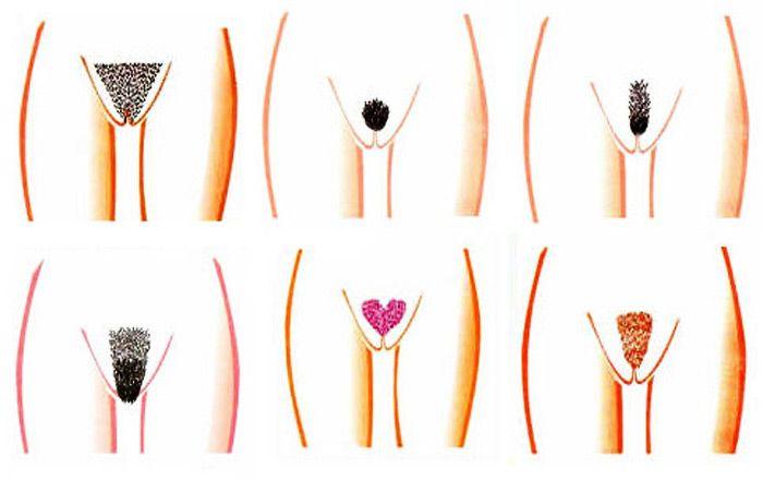 Женские интимные стрижки бикини